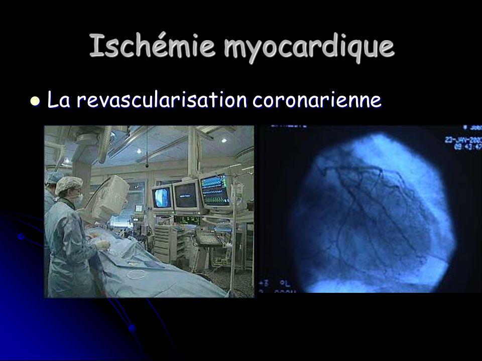Ischémie myocardique La revascularisation coronarienne La revascularisation coronarienne