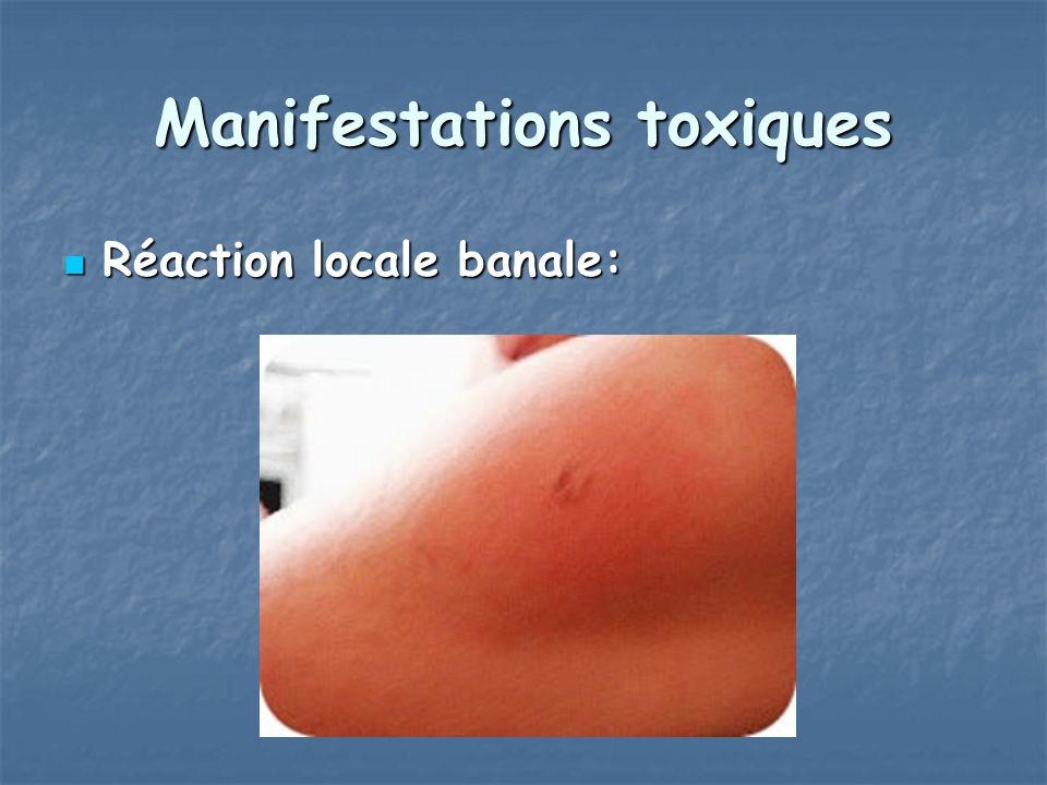 Manifestations toxiques Réaction locale banale: Réaction locale banale: