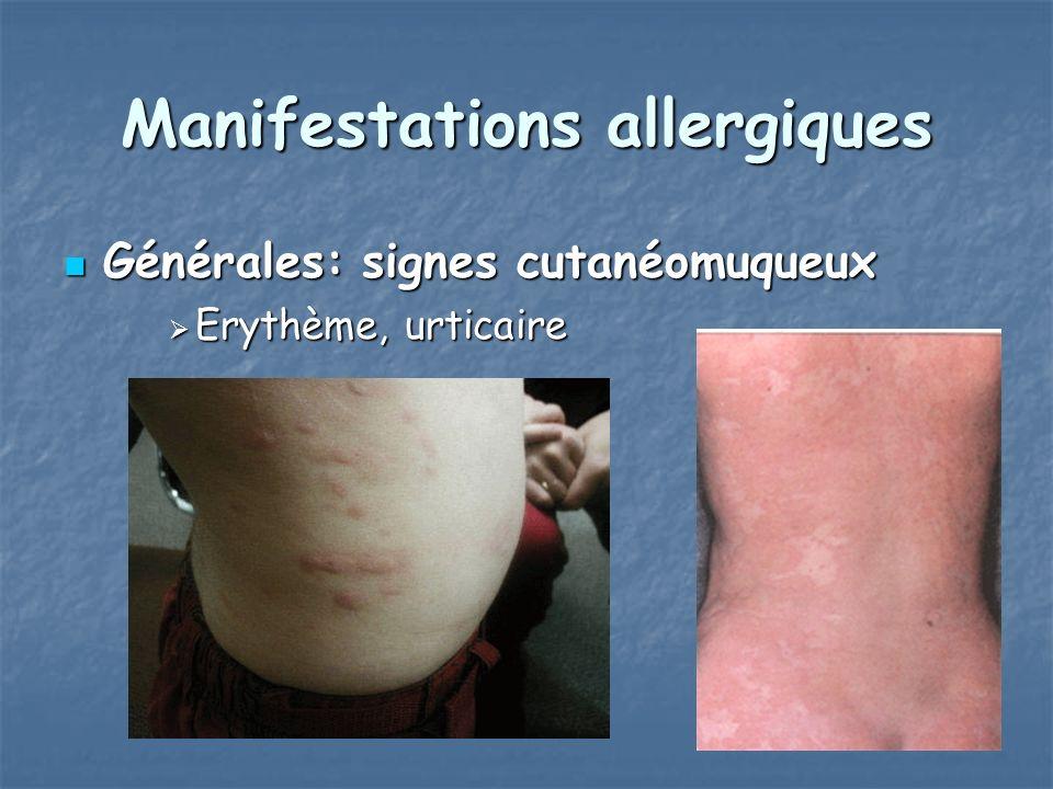 Manifestations allergiques Générales: signes cutanéomuqueux Générales: signes cutanéomuqueux Erythème, urticaire Erythème, urticaire