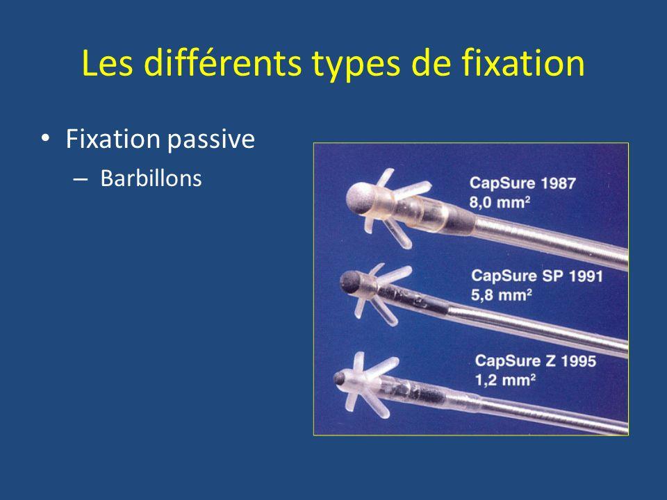Les différents types de fixation Fixation passive – Barbillons