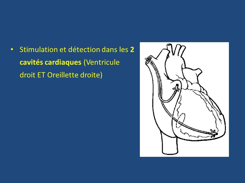 Stimulation et détection dans les 2 cavités cardiaques (Ventricule droit ET Oreillette droite)