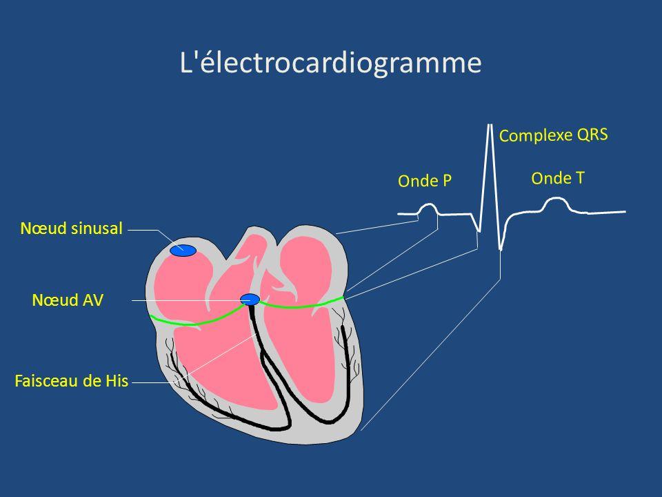 L'électrocardiogramme Nœud sinusal Faisceau de His Nœud AV Onde P Complexe QRS Onde T