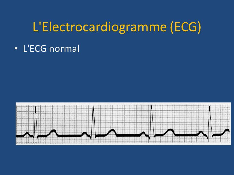 L'Electrocardiogramme (ECG) L'ECG normal