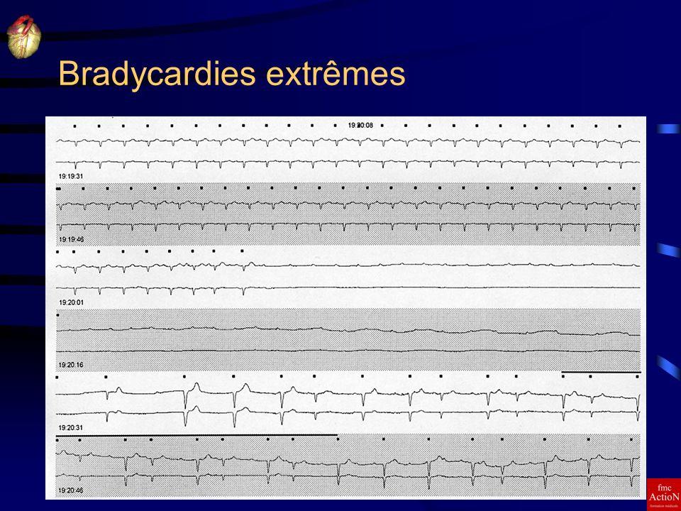 8 et 9 Juin 2007Séminaire DINAN17 Bradycardies extrêmes