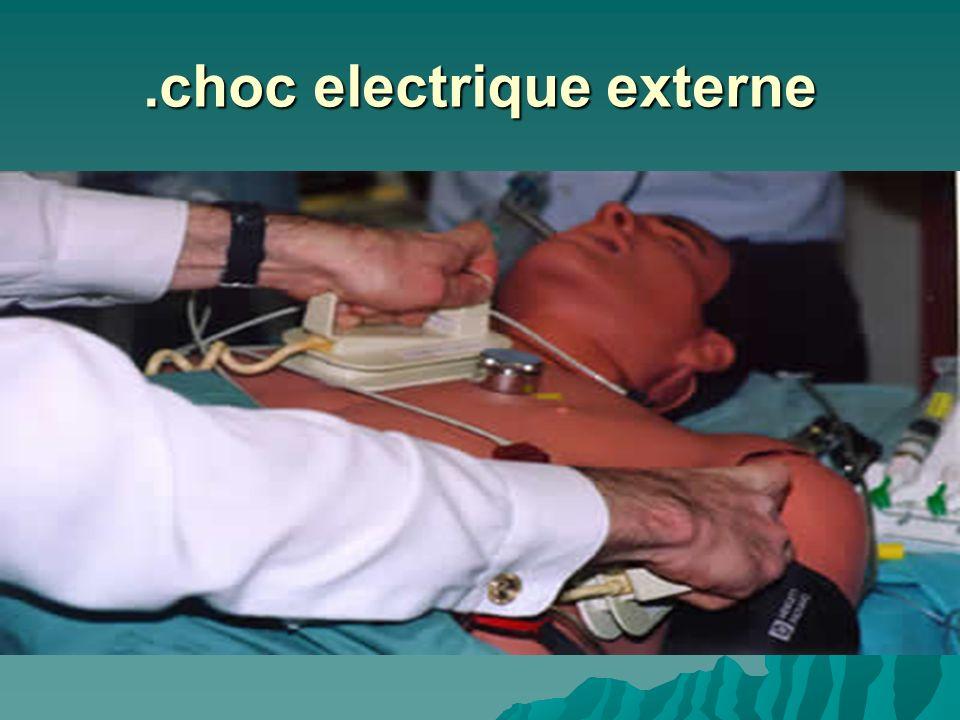 .choc electrique externe