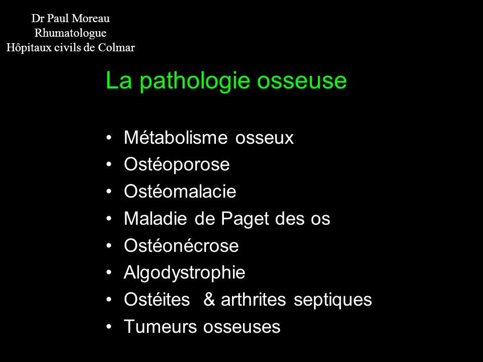 Dr Paul Moreau Rhumatologue Hôpitaux civils de Colmar La pathologie osseuse Métabolisme osseux Ostéoporose Ostéomalacie Maladie de Paget des os Ostéon
