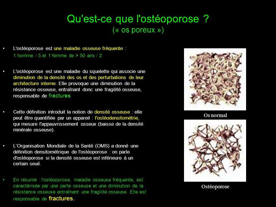 Qu'est-ce que l'ostéoporose ? (« os poreux ») L'ostéoporose est une maladie osseuse fréquente : 1 homme / 5 et 1 femme de > 50 ans / 2. L'ostéoporose