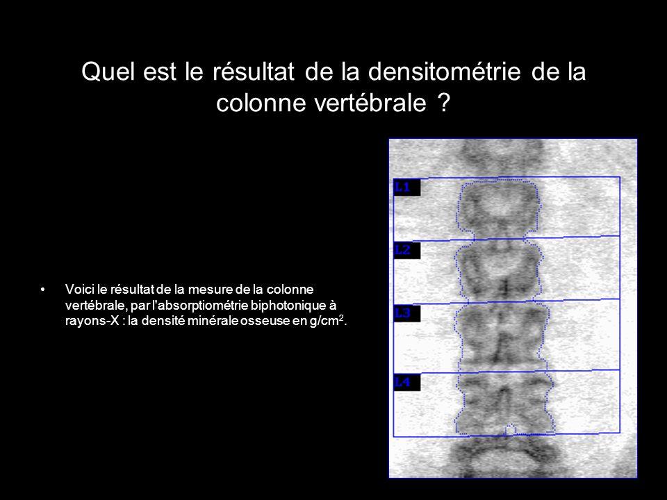 Quel est le résultat de la densitométrie de la colonne vertébrale ? Voici le résultat de la mesure de la colonne vertébrale, par l'absorptiométrie bip