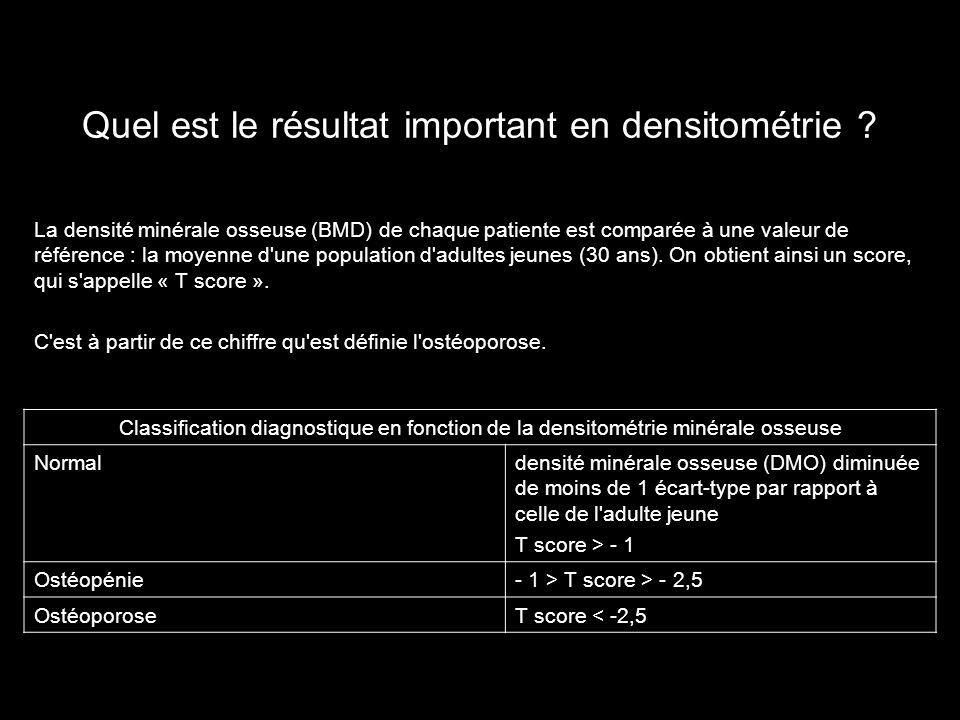 Quel est le résultat important en densitométrie ? Classification diagnostique en fonction de la densitométrie minérale osseuse Normaldensité minérale