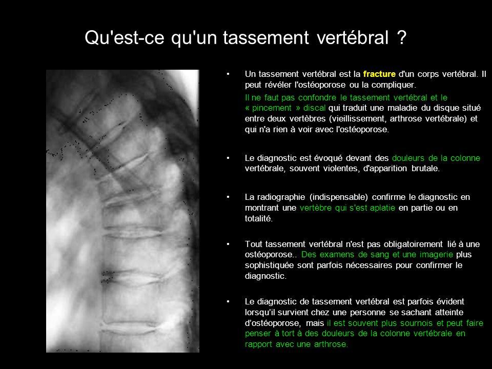 Qu'est-ce qu'un tassement vertébral ? Un tassement vertébral est la fracture d'un corps vertébral. Il peut révéler l'ostéoporose ou la compliquer. Il