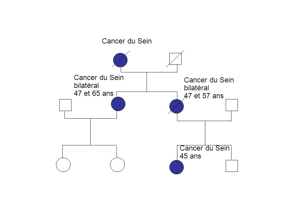 Cancer du Sein bilatéral 47 et 65 ans Cancer du Sein bilatéral 47 et 57 ans Cancer du Sein 45 ans