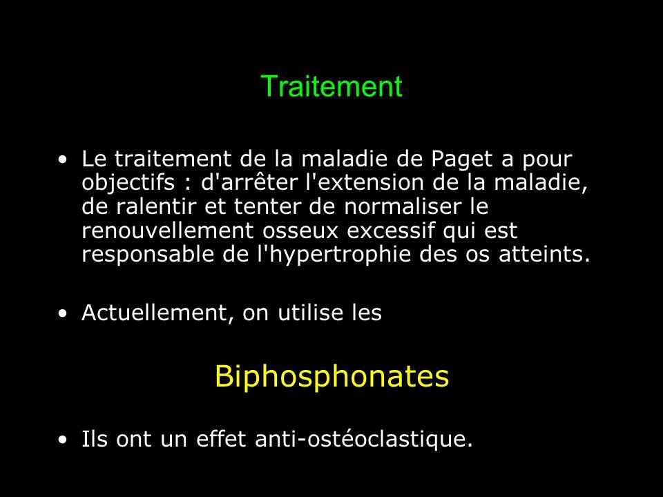 Traitement Le traitement de la maladie de Paget a pour objectifs : d'arrêter l'extension de la maladie, de ralentir et tenter de normaliser le renouve