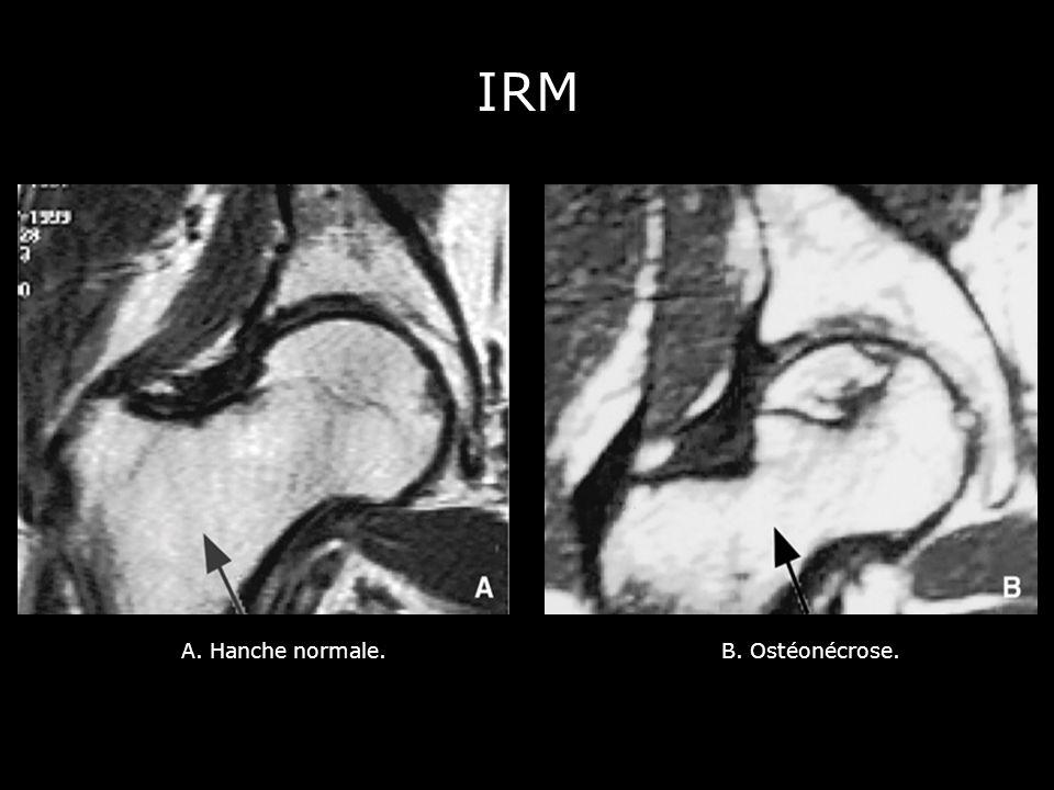 A. Hanche normale.B. Ostéonécrose. IRM