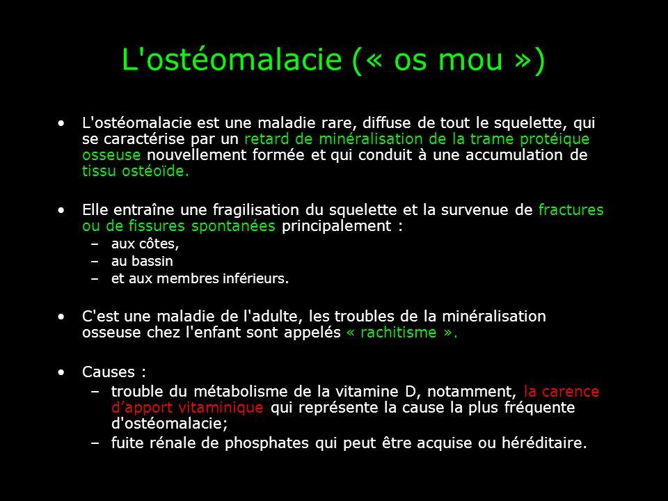 L'ostéomalacie (« os mou ») L'ostéomalacie est une maladie rare, diffuse de tout le squelette, qui se caractérise par un retard de minéralisation de l