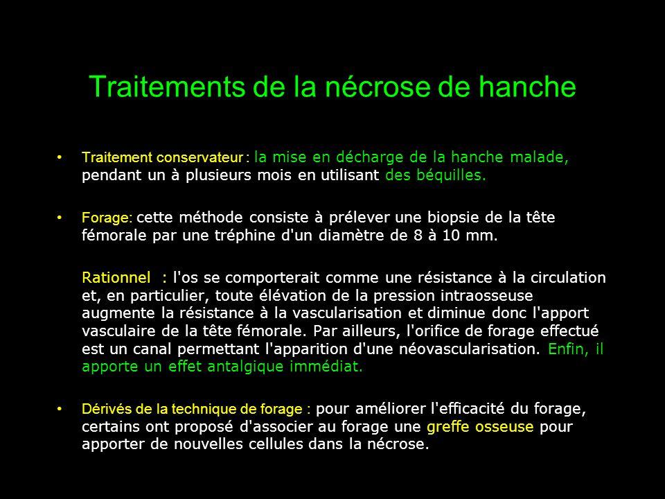Traitements de la nécrose de hanche Traitement conservateur : la mise en décharge de la hanche malade, pendant un à plusieurs mois en utilisant des bé