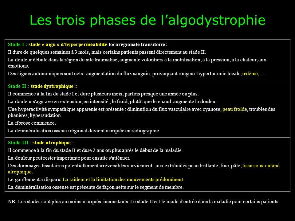 Les trois phases de lalgodystrophie Stade I : stade « aigu » d'hyperperméabilité locorégionale transitoire : Il dure de quelques semaines à 3 mois, ma