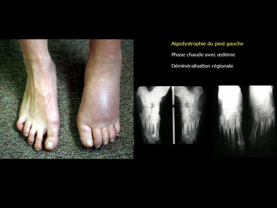 Algodystrophie du pied gauche Phase chaude avec œdème Déminéralisation régionale