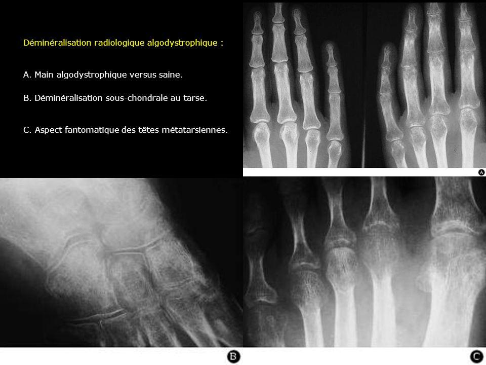 Déminéralisation radiologique algodystrophique : A. Main algodystrophique versus saine. B. Déminéralisation sous-chondrale au tarse. C. Aspect fantoma