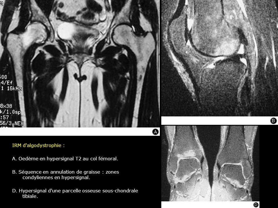IRM d'algodystrophie : A. Oedème en hypersignal T2 au col fémoral. B. Séquence en annulation de graisse : zones condyliennes en hypersignal. D. Hypers