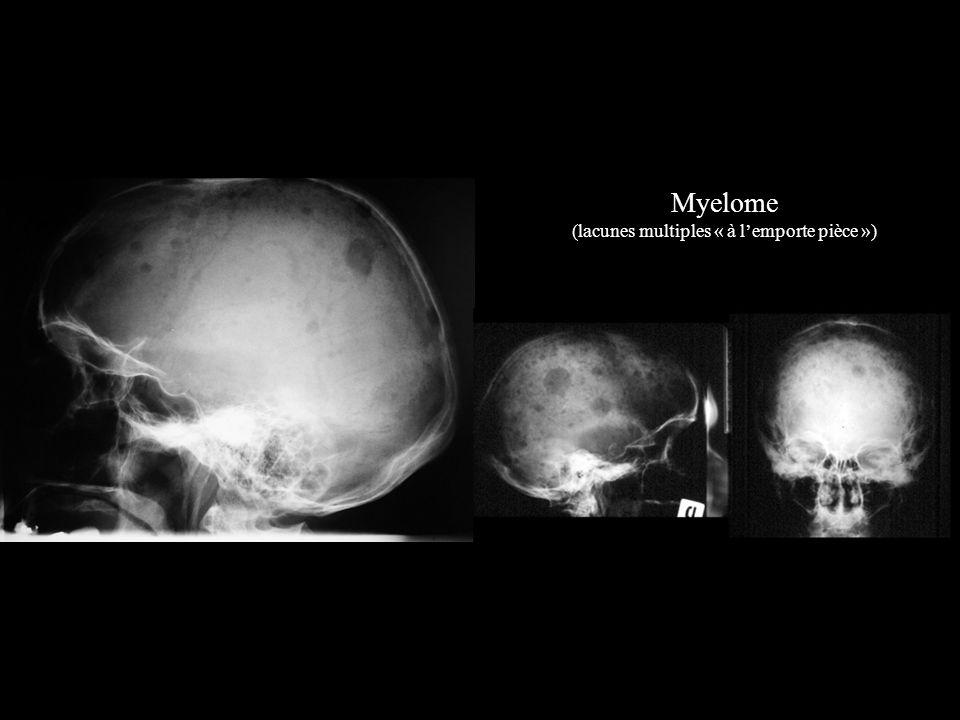 Myelome (lacunes multiples « à lemporte pièce »)