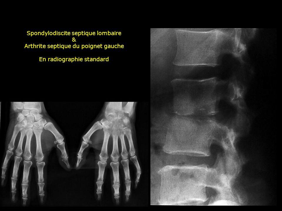 Spondylodiscite septique lombaire & Arthrite septique du poignet gauche En radiographie standard