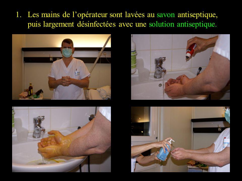 1.Les mains de lopérateur sont lavées au savon antiseptique, puis largement désinfectées avec une solution antiseptique.