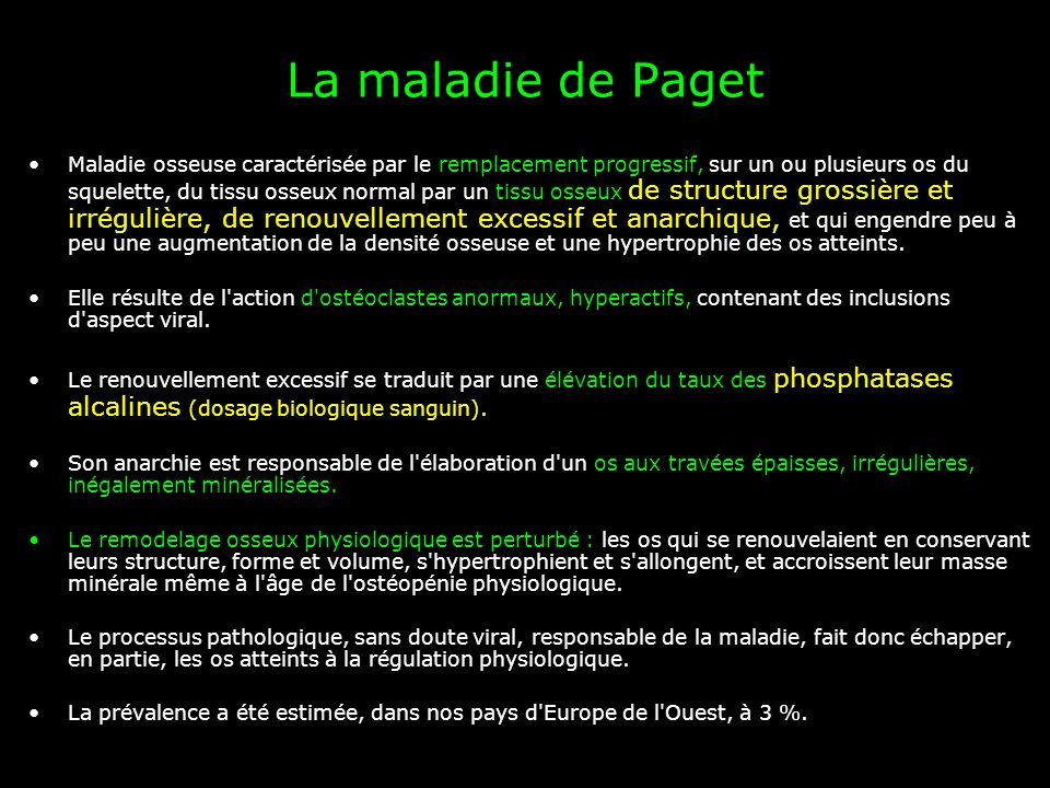 La maladie de Paget Maladie osseuse caractérisée par le remplacement progressif, sur un ou plusieurs os du squelette, du tissu osseux normal par un ti