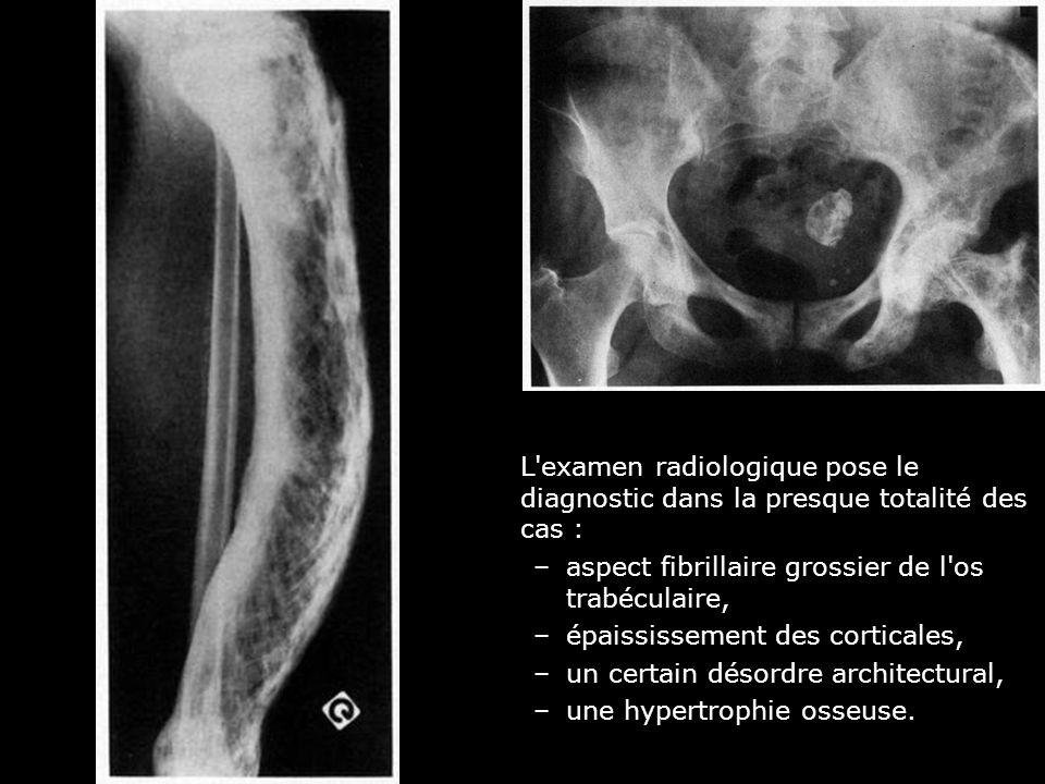 L'examen radiologique pose le diagnostic dans la presque totalité des cas : –aspect fibrillaire grossier de l'os trabéculaire, –épaississement des cor