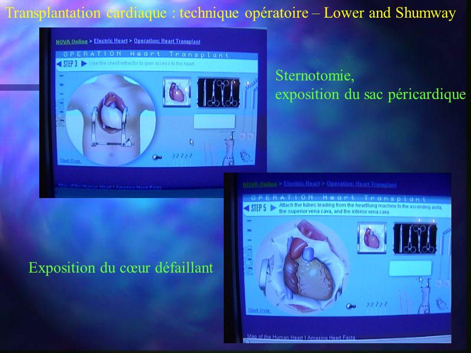 Transplantation cardiaque : technique opératoire – Lower and Shumway Sternotomie, exposition du sac péricardique Exposition du cœur défaillant