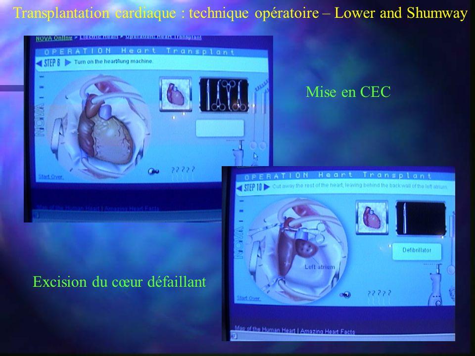 Transplantation cardiaque : technique opératoire – Lower and Shumway Mise en CEC Excision du cœur défaillant