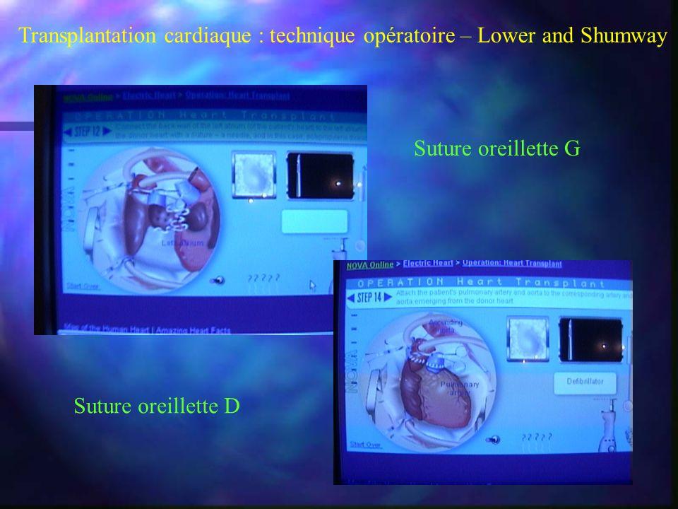Transplantation cardiaque : technique opératoire – Lower and Shumway Suture oreillette G Suture oreillette D