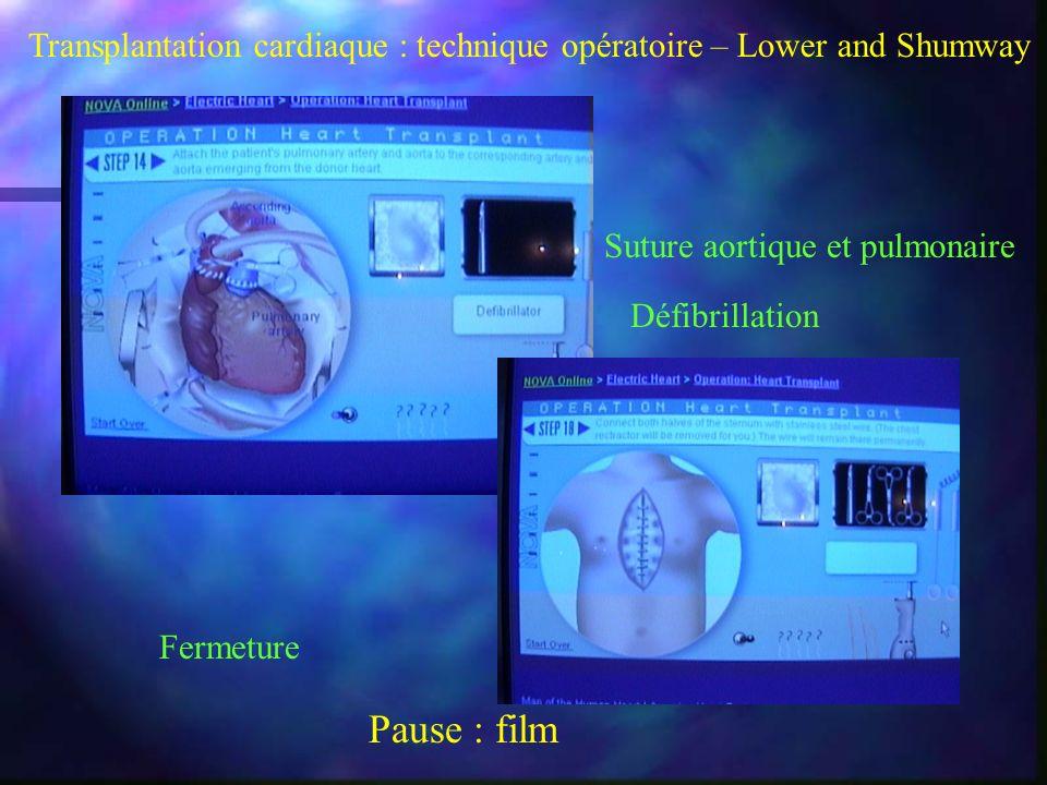 Transplantation cardiaque : technique opératoire – Lower and Shumway Suture aortique et pulmonaire Fermeture Défibrillation Pause : film