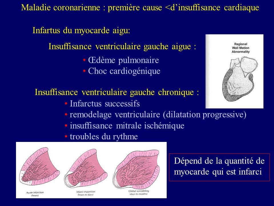 Cardiomyopathies : deuxième cause dinsuffisance cardiaque Cardiomyopathie de cause connue : toxique (alcool, plomb, drogues…) hypertensive diabétique post-partum par surcharge (amyloïdose, glycogène…) médicamenteuse (anticancéreux) familiale atteinte mitochondriale atteinte virale (cocksakie B…) Cardiomyopathie primitive Myocardite aigue