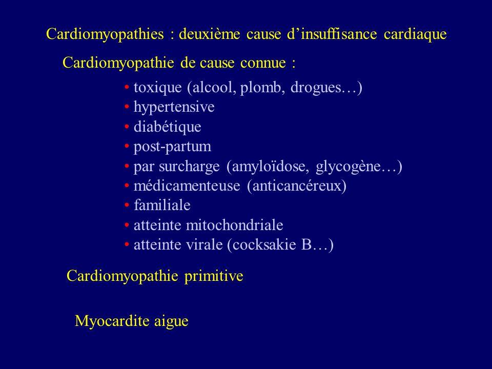 Cardiomyopathies : deuxième cause dinsuffisance cardiaque Cardiomyopathie de cause connue : toxique (alcool, plomb, drogues…) hypertensive diabétique