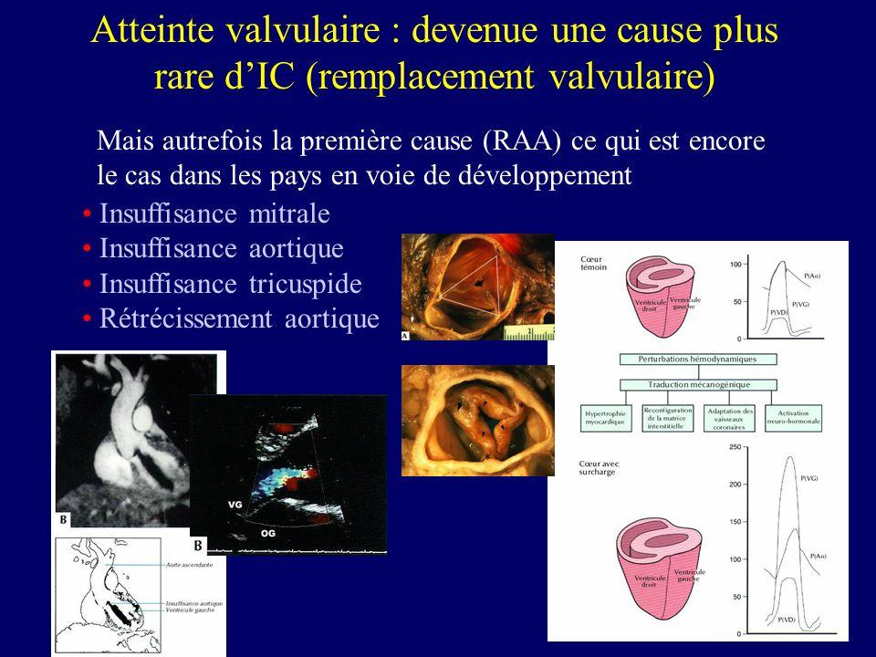 Atteinte valvulaire : devenue une cause plus rare dIC (remplacement valvulaire) Mais autrefois la première cause (RAA) ce qui est encore le cas dans l
