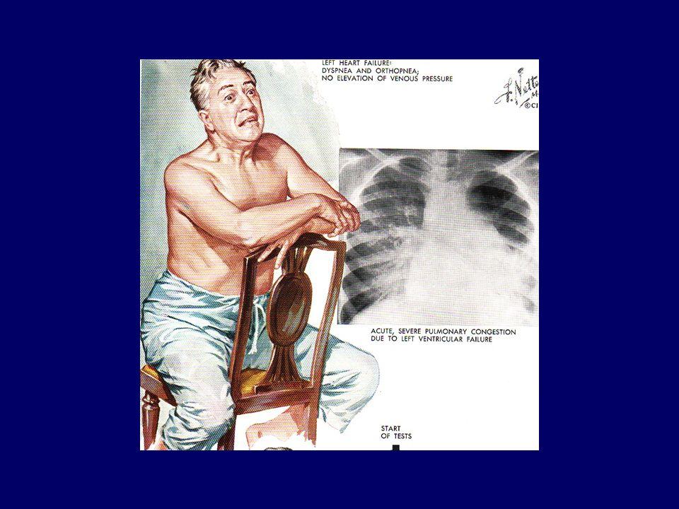 Insuffisance cardiaque aigue : choc cardiogénique = combinaison de congestion pulmonaire (OAP) et de baisse du débit cardiaque (hypotension) chute de la PA systolique < 90 mm Hg chute du débit urinaire < 30 ml/heure baisse de la saturation artérielle (OAP) signes de baisse du débit cardiaque : - aspect « gris » du malade - extrémités cyanosées - sueurs (froides) profuses - confusion mentale - douleurs abdominales progressivement : défaillance multiviscérale (hépatique et rénale) Mortalité du choc cardiogénique : 50 – 90 %