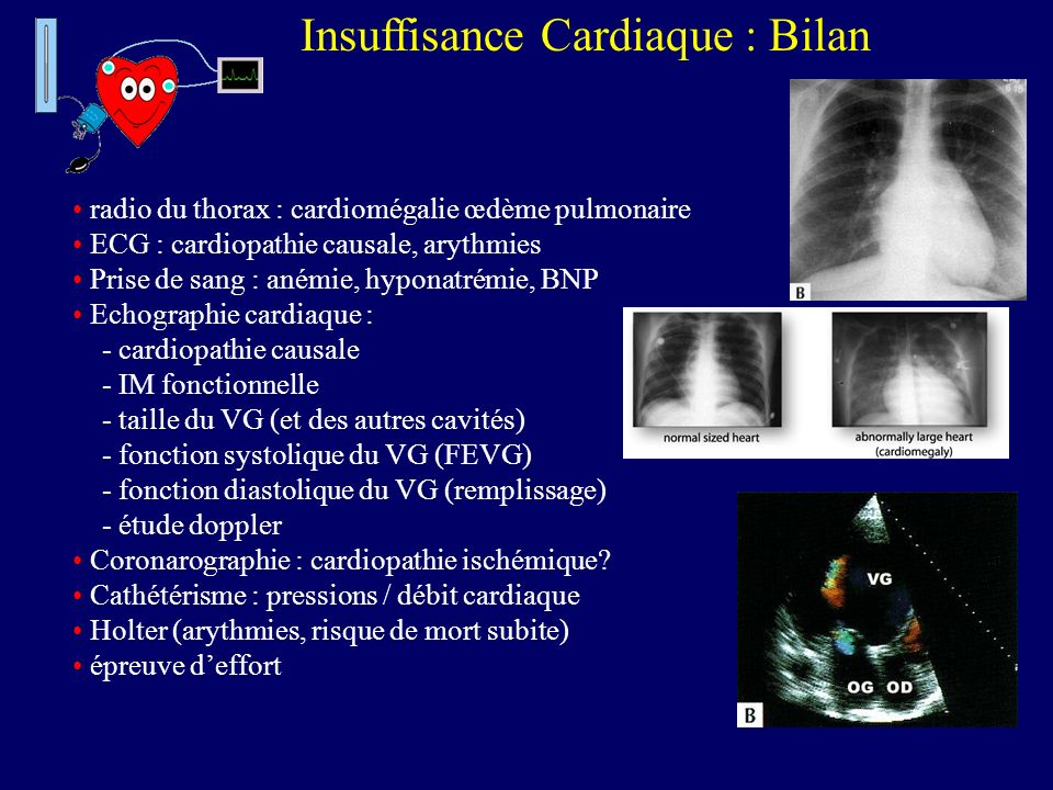 Insuffisance Cardiaque : Bilan radio du thorax : cardiomégalie œdème pulmonaire ECG : cardiopathie causale, arythmies Prise de sang : anémie, hyponatr