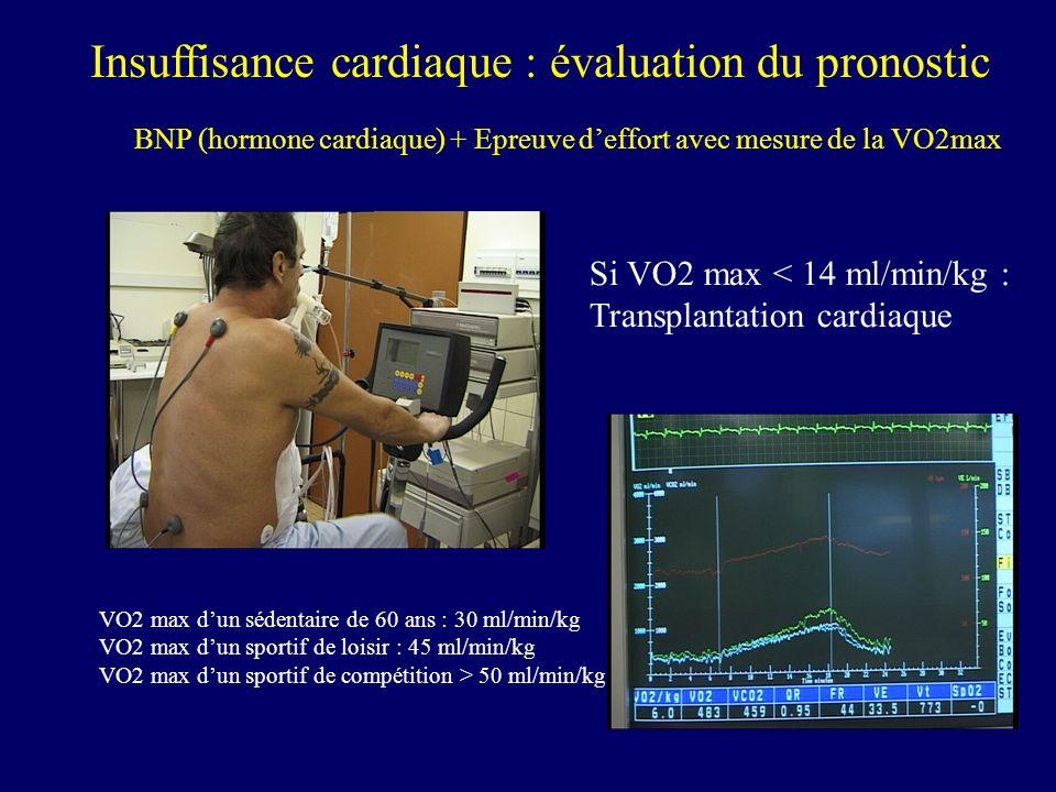 Insuffisance cardiaque : évaluation du pronostic BNP (hormone cardiaque) + Epreuve deffort avec mesure de la VO2max Si VO2 max < 14 ml/min/kg : Transp