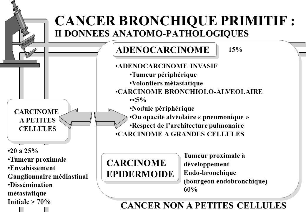 CARCINOME A PETITES CELLULES CARCINOME A PETITES CELLULES CANCER BRONCHIQUE PRIMITIF : II DONNEES ANATOMO-PATHOLOGIQUES ADENOCARCINOME CARCINOME EPIDE