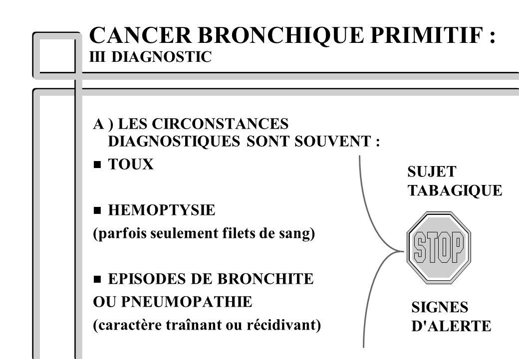 CANCER BRONCHIQUE PRIMITIF : III DIAGNOSTIC A ) LES CIRCONSTANCES DIAGNOSTIQUES SONT SOUVENT : n TOUX n HEMOPTYSIE (parfois seulement filets de sang)