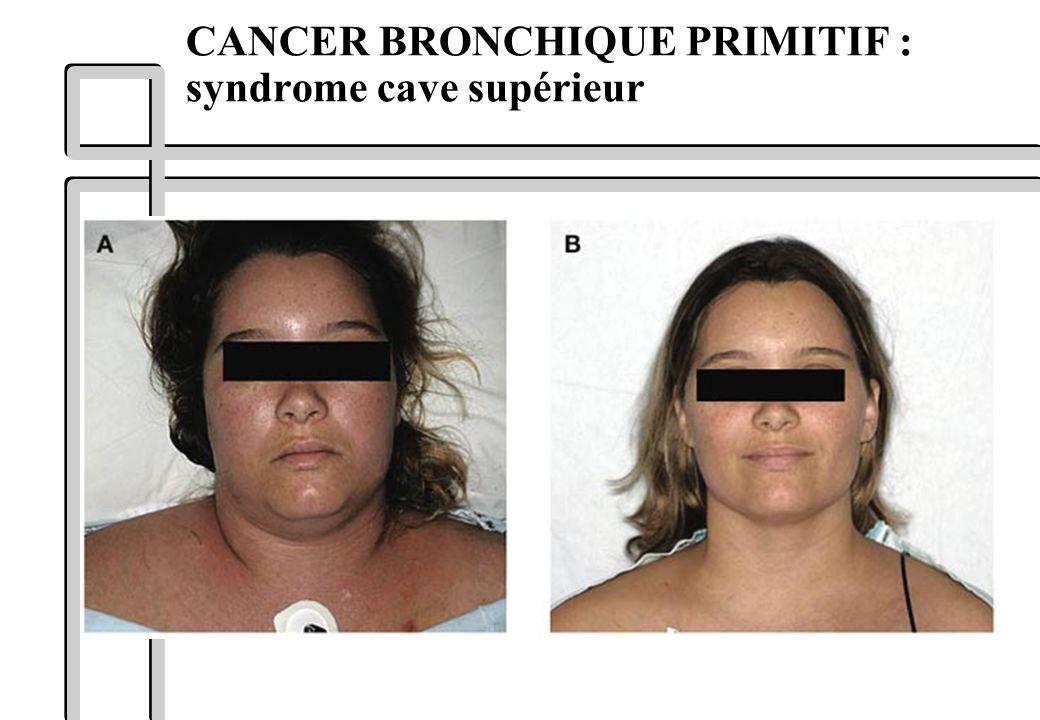 CANCER BRONCHIQUE PRIMITIF : syndrome cave supérieur