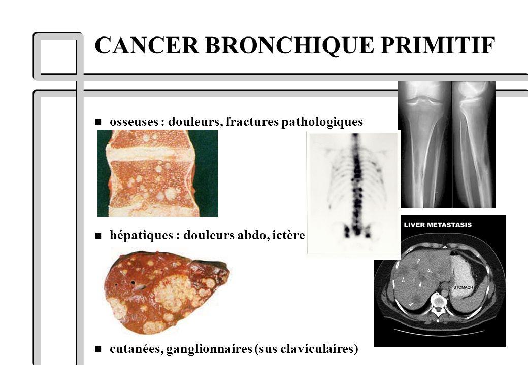 n osseuses : douleurs, fractures pathologiques n hépatiques : douleurs abdo, ictère n cutanées, ganglionnaires (sus claviculaires) CANCER BRONCHIQUE P