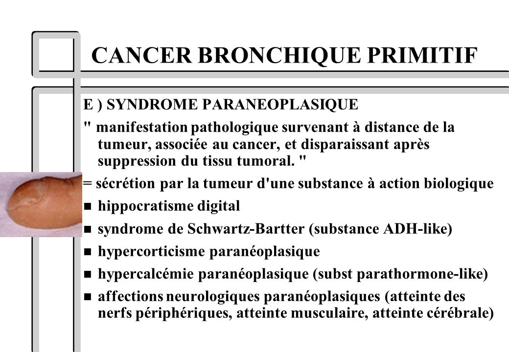 E ) SYNDROME PARANEOPLASIQUE