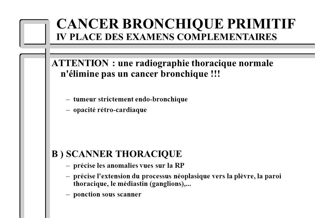 ATTENTION : une radiographie thoracique normale n'élimine pas un cancer bronchique !!! –tumeur strictement endo-bronchique –opacité rétro-cardiaque B