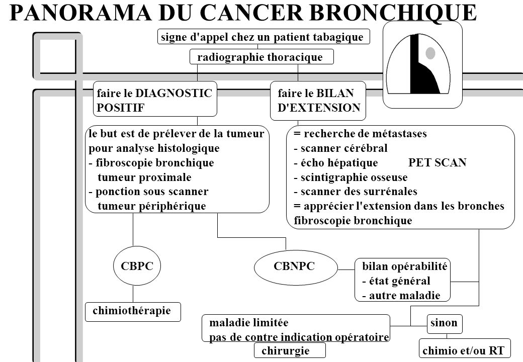 PANORAMA DU CANCER BRONCHIQUE signe d'appel chez un patient tabagique radiographie thoracique faire le DIAGNOSTIC POSITIF faire le BILAN D'EXTENSION =