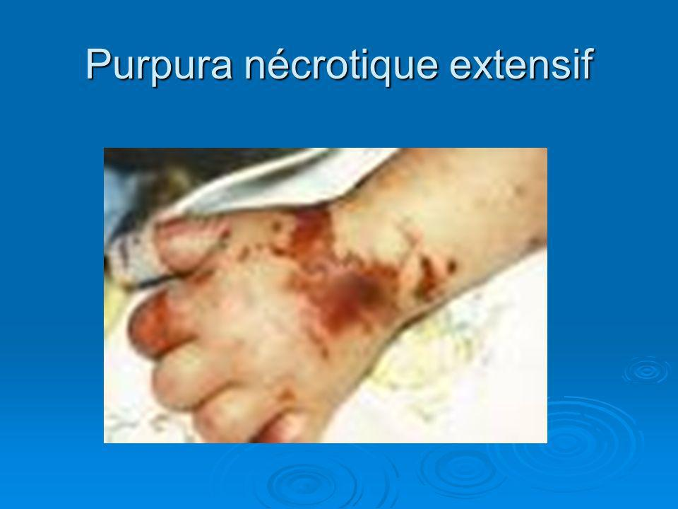 Purpura nécrotique extensif