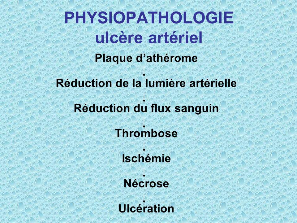 PHYSIOPATHOLOGIE ulcère artériel Plaque dathérome Réduction de la lumière artérielle Réduction du flux sanguin Thrombose Ischémie Nécrose Ulcération