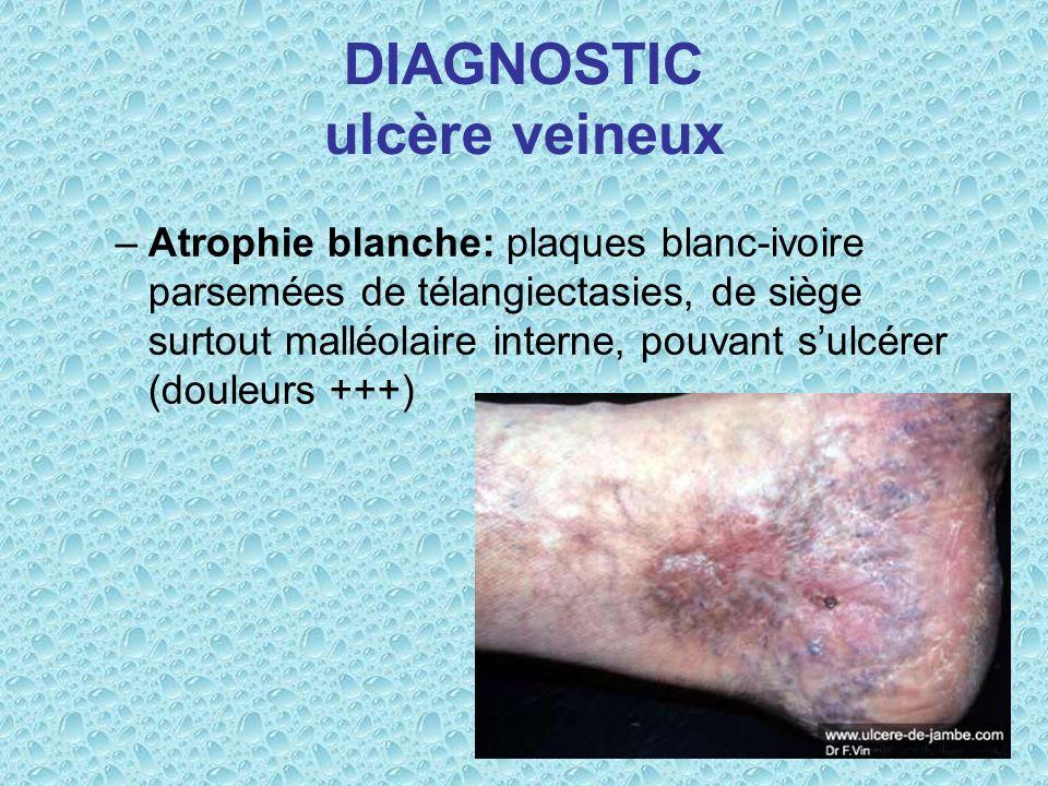DIAGNOSTIC ulcère veineux –Atrophie blanche: plaques blanc-ivoire parsemées de télangiectasies, de siège surtout malléolaire interne, pouvant sulcérer