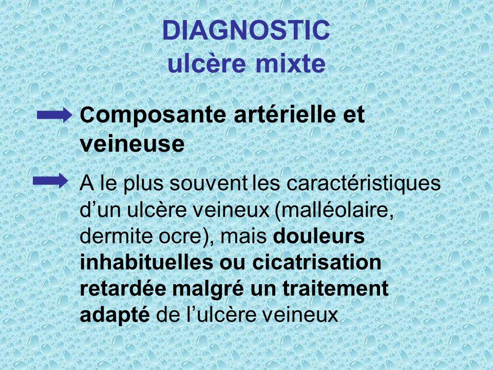 DIAGNOSTIC ulcère mixte C omposante artérielle et veineuse A le plus souvent les caractéristiques dun ulcère veineux (malléolaire, dermite ocre), mais