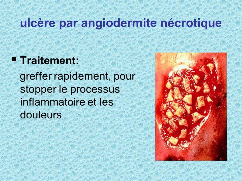 ulcère par angiodermite nécrotique Traitement: greffer rapidement, pour stopper le processus inflammatoire et les douleurs